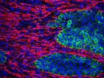 岡山大など、膵臓がんを試験管内で3次元培養して再構成