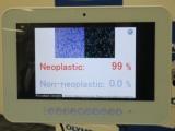 AI搭載の腫瘍識別ソフト、オリンパスが発売へ