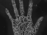 さらば造影剤、0.2ミリの微小血管まで見える光超音波技術が変える「常識」