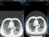 新型肺炎をAIで診断支援、中国のIT企業が武漢市の医師らとシステムを開発