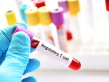 Mogrify社とSangamo社、炎症性疾患や自己免疫疾患にCAR-Treg療法開発へ