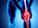 ステムリム、変形性膝関節症に再生誘導医薬の医師主導治験開始へ