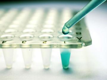 米AVROBIO社、ハンター症候群の遺伝子治療を英大学から導入