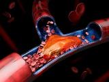 レナサイエンスが第一三共にPAI-1阻害薬を導出へ、COVID-19の重症化を阻止
