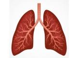 米Nucleix社が5500万ドル調達、肺がんを早期発見する「Lung EpiCheck」の開発推進