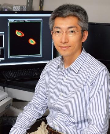 トキソプラズマ研究からがんの排除機序の一端が明らかに