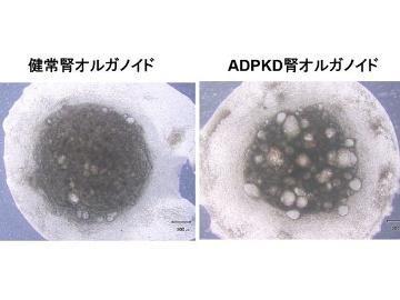 リジェネフロ、最多の単一遺伝子疾患の治療薬開発へiPS細胞を創薬応用
