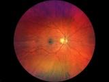 ロート製薬、眼の情報から疾患の全身性発症などを予測するアプリなど開発へ