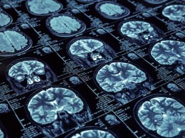 米UCSF、埋め込み型デバイスで脳深部を刺激すると重症うつ病に有効と発表